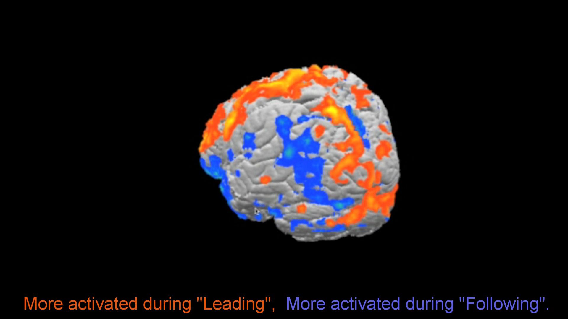 See what happens to your Brain when you Dance